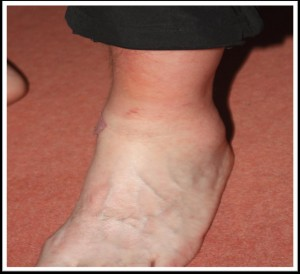 One of my swollen ankles (I had a matching pair)